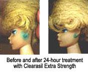 clearasil - a fix for barbie green ears